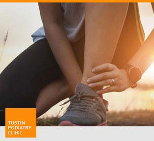 Ankle Sprain Treatment - Tustin Podiatry Clinic in Tustin, CA.