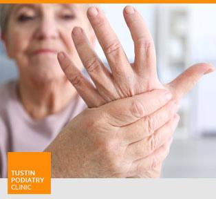 Arthritis - Tustin Podiatry Clinic in Tustin, CA.