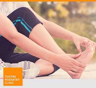 Athlete's Foot - Tustin Podiatry Clinic in Tustin, CA.