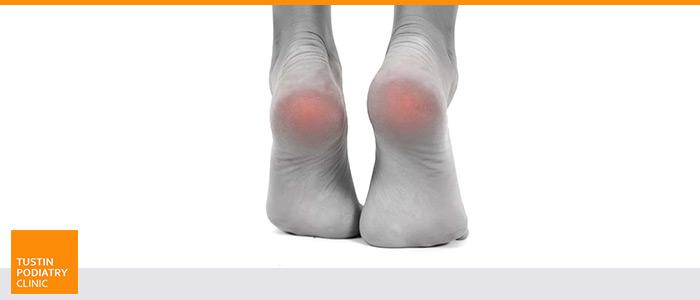 Diabetic Foot Care in Tustin, CA