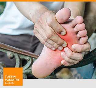 Diabetic Foot - Tustin Podiatry Clinic in Tustin, CA.