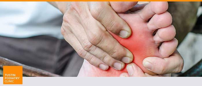 Diabetic Foot Treatment at Tustin Podiatry Clinic