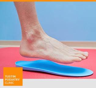 Flat Feet - Tustin Podiatry Clinic in Tustin, CA.