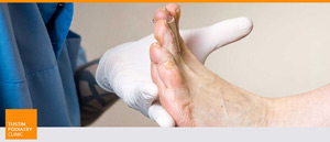 Foot and Ankle Medicine and Surgery at Tustin Podiatry Clinic