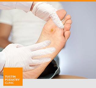 Foot Ulcer - Tustin Podiatry Clinic in Tustin, CA.