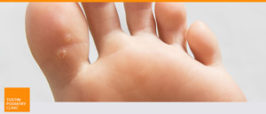 Foot Warts Treatment at Tustin Podiatry Clinic