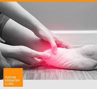 Heel Pain Treatment - Tustin Podiatry Clinic in Tustin, CA.