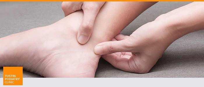 Tustin, CA Heel Pain Treatment