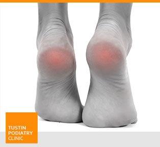 Heel Pain - Planter Fasciitis -  Tustin Podiatry Clinic in Tustin, CA.