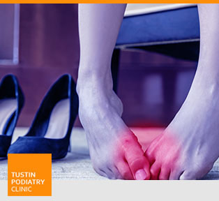 High Arched Feet - Tustin Podiatry Clinic in Tustin, CA.
