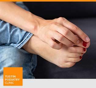 Ingrown Toenail Treatment - Tustin Podiatry Clinic in Tustin, CA.