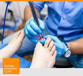 Laser Fungal Nail Treatment - Tustin Podiatry Clinic in Tustin, CA.