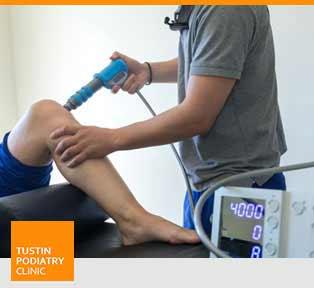 EPAT/Shockwave Therapy - Tustin Podiatry Clinic in Tustin, CA.